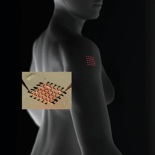 имплант от боли